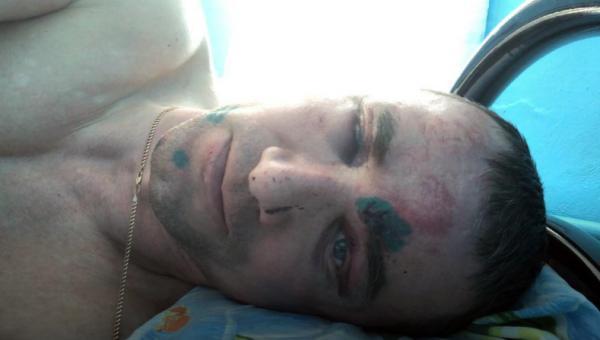 Экскаваторщик Алексей Козлов после инцидента (фото: region29.ru)